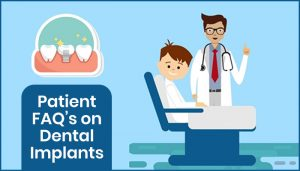 Patient FAQ's on Dental Implants
