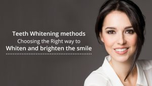 Teeth Whitening Methods