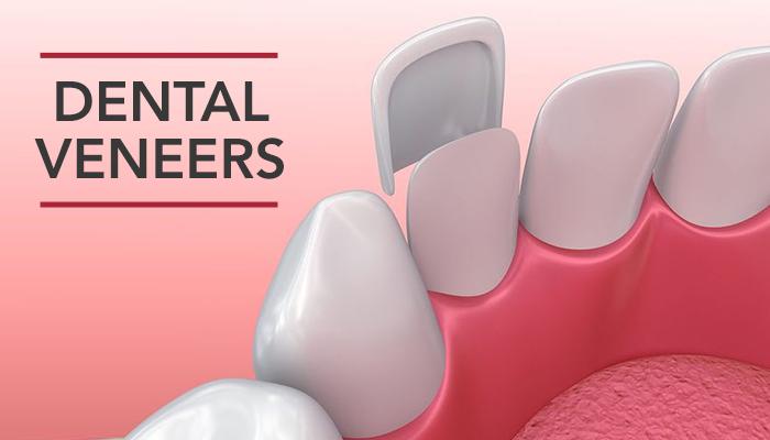 Dental Veneers Images