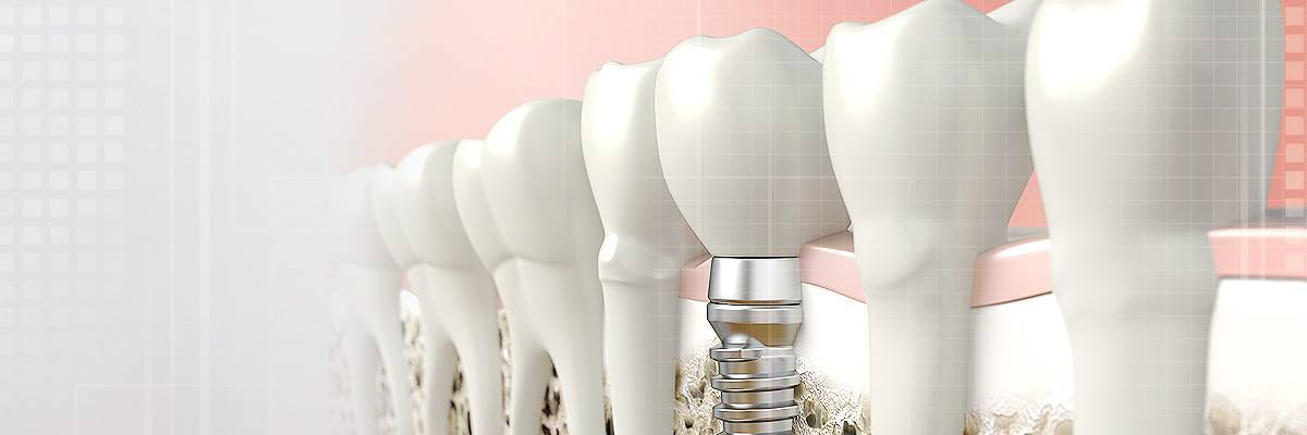 Alpharetta Dental Prosthetics