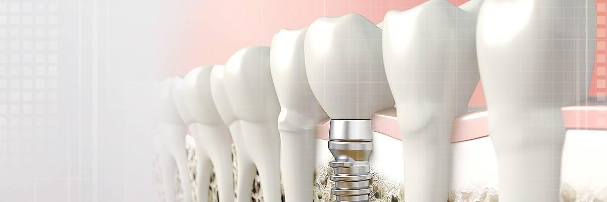Alpharetta Dental Prosthetics