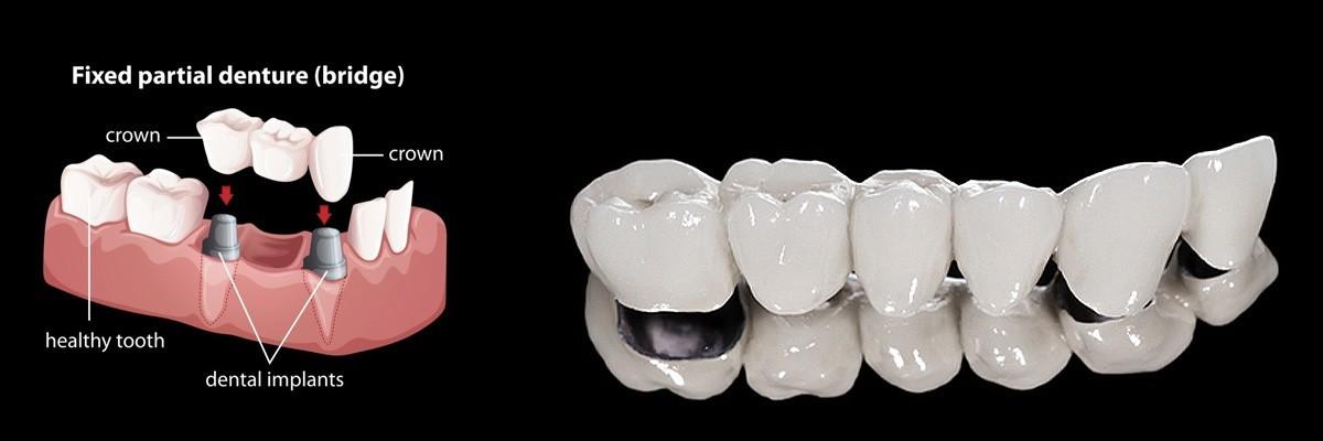 Alpharetta Dentures