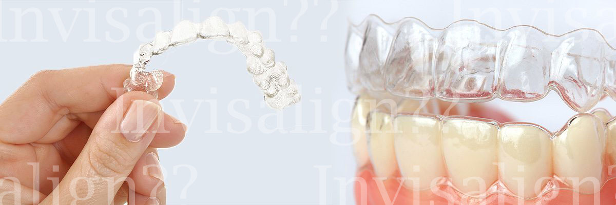 Alpharetta Does Invisalign® Really Work?