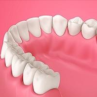 Gum Disease Alpharetta, GA