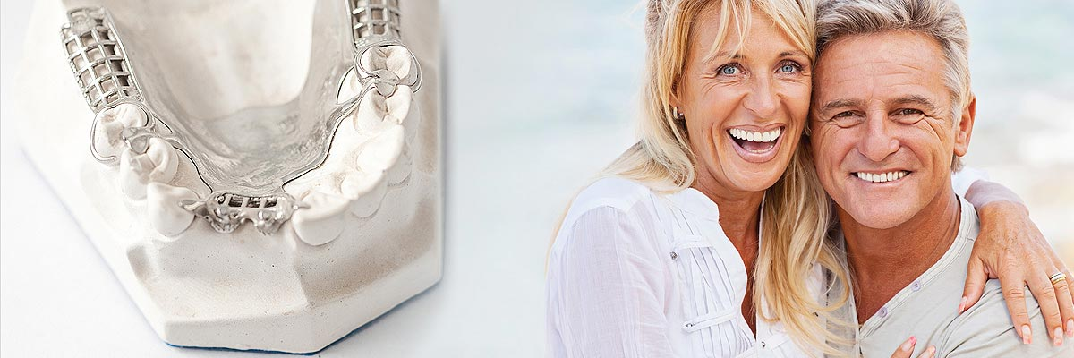 Alpharetta Implant Supported Dentures