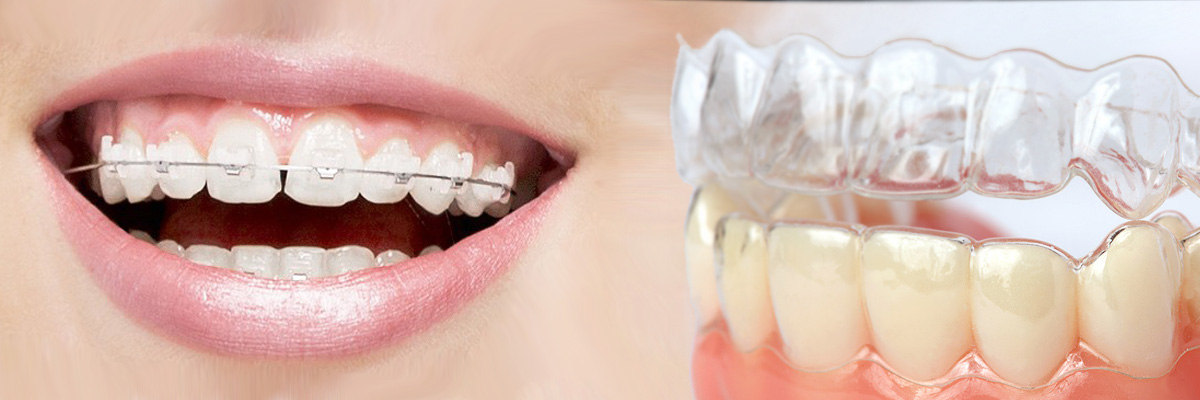 Alpharetta Invisalign vs Traditional Braces