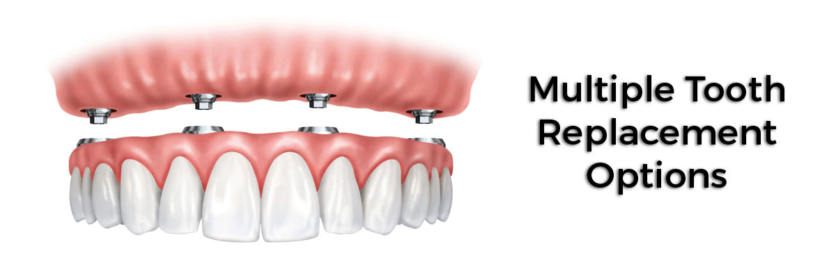 Alpharetta Multiple Teeth Replacement Options