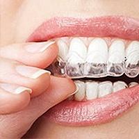 Invisalign® Dentist