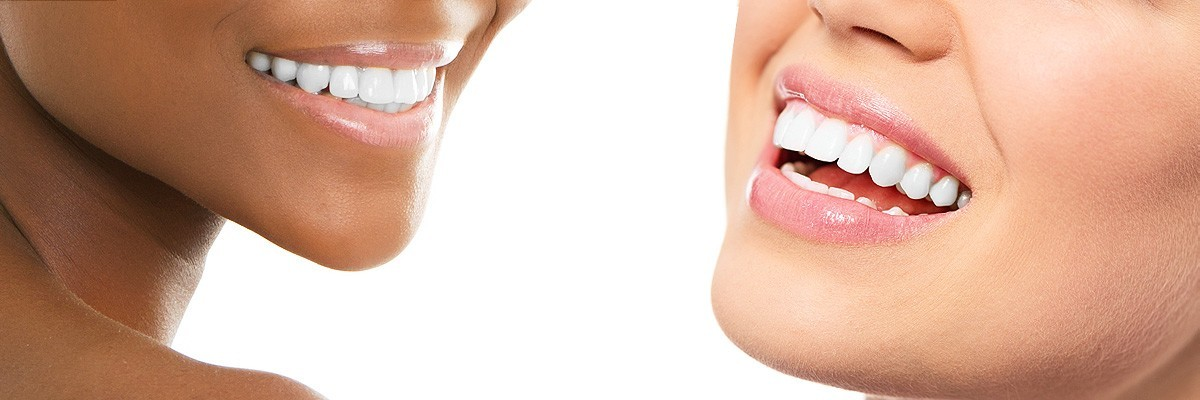 Alpharetta Teeth Whitening