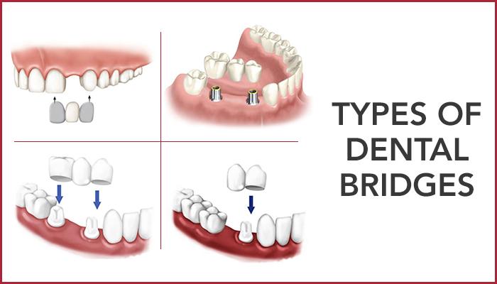 types-of-dentalbridges-its-uses